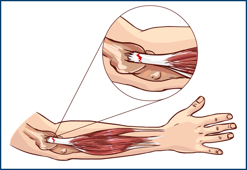 Golfers Elbow diagnosis and Chiropractic treatment